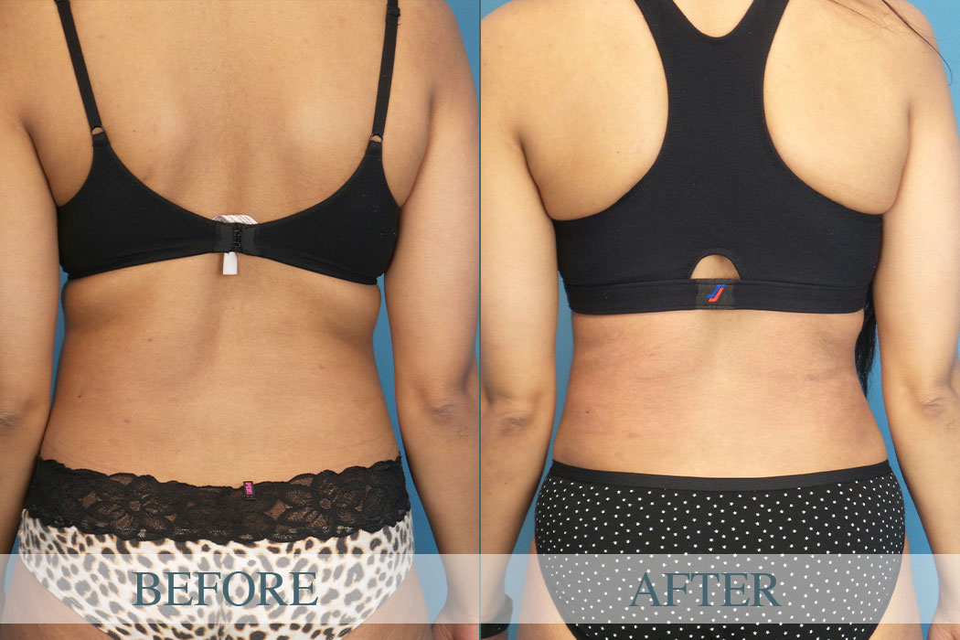 Before And After Back Liposuction Atlanta Gallery