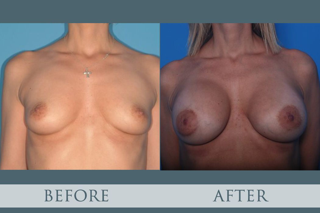 Breast Augmentation - Plastic Surgery in Atlanta, GA