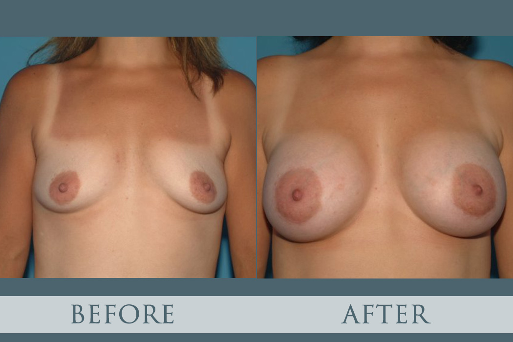 Atlanta Breast Augmentation - Atlanta Plastic Surgery